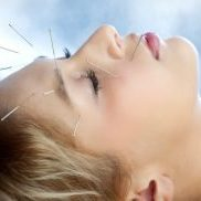 facial_rejuvenation_acupuncture